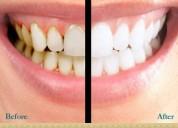 Best teeth whitening treatment in hyderabad   dine