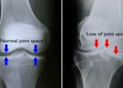 Best treatment of knee surgery in delhi ncr