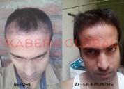 Best hair transplant clinic in chandigarh
