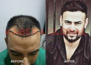 Prp from hair transplant clinic in chandigarh