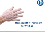 Control vitiligo using homeopathy in coimbatore
