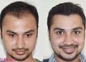 Hair transplant cost in delhi india|8527220878