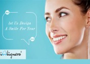 Minimal steps to take care of 'ialigners' - perfec