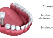 Retain your smile at the best tooth implant cost i