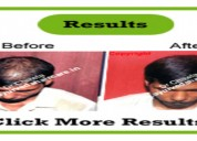 Alopecia universalis - ayurveda hair care