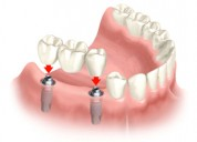 Cost effective dental treatment in india