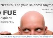 Top fue hair transplant clinic in delhi