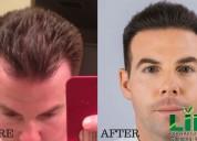 hair transplant treatment | hair transplant clinic