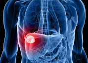 Liver hepatitis treatment and surgery in delhi, i