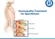 Homeopathy Spondylosis Treatment