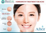 6 best homeopathy mediciens for acne