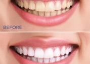 Get best dentist in indirapuram ghaziabad