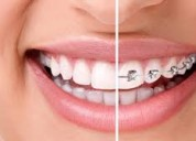 Best offers dentist in indirapuram ghaziabad