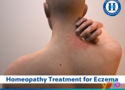Best eczema treatment with homeopathy in madurai