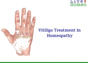 Why to choose homeopathy for vitiligo treatment ?