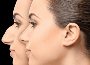 Rhinoplasty nose surgery cost in delhi