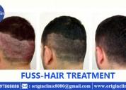hair transplantation | hair transplantation in hyderabad | best hair transplant doctors
