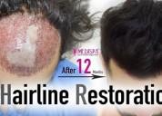 Hair transplant in bangalore   8527220878