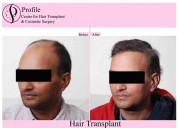 Acclaimed centre for hair transplant in india