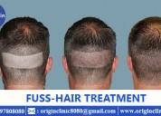 Fue hair transplant clinics hair loss treatment