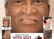 Microskin - vitiligo makeup cream