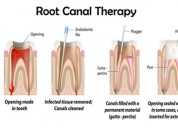 Best root canal in pune