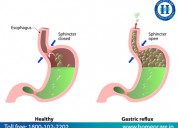 Solve gastritis problem with homeopathy