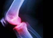Dr shailendra patil review about knee replacement