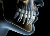 Dental implants clinic in gurgaon - punyam dental