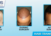 Hair transplant in jalandhar