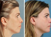 Chin augmentation surgery cost in india