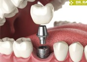 Dental implant in gurgoan- to make smile perfect.