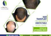 Cure any type of hair disorder with homeopathy
