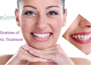Classifications of dental cosmetic treatment