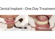 Dental implants center in mumbai