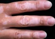 Best doctor for vitiligo treatment in delhi