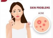 Eliminate acne scars by using laser treatment