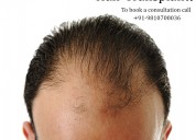 How do i choose a plastic surgeon for hair transpl