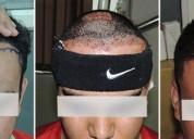 Hair transplant in pune- sai cosmetics