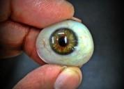 Eye prosthesis in india   artificial eye transplan