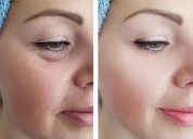 Baggy eyelid correction surgery in lucknow