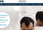 Adon clinic | hair transplant clinic in mumbai