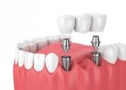 Dental implant cost in chennai - akeela dental car