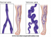 Why are varicose veins dangerous