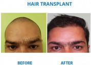 Hair transplant clinic in south delhi