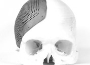 Skull implants, cranial implants by 3d incredible