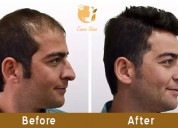 Hair transplant results depend largely on the surg