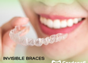 Invisible braces in rr nagar