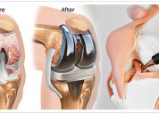 One of the leading orthopedic surgeon in jaipur