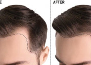 Get the best hair patch in gurgaon